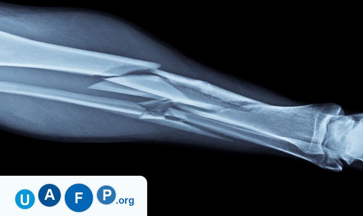 Broken Bone