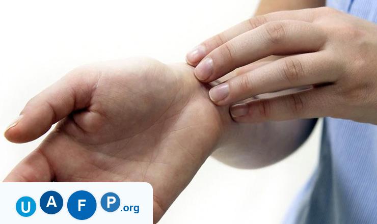 Eczema on Skin